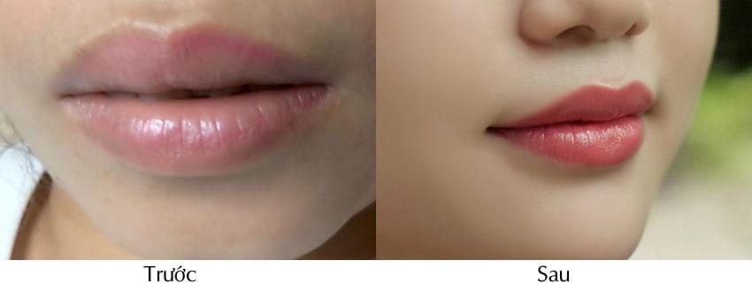 Viện Thẩm Mỹ DIVA Vị Thanh - Nơi đôi môi được nâng lên vẻ đẹp mới