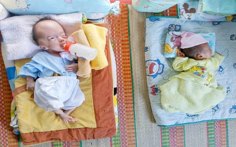 Những em bé bất hạnh cần lắm sự yêu thương của cả cộng đồng.