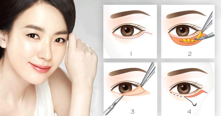 Bọng mắt là gì? Nguyên nhân - Cách điều trị từ A - Z 3