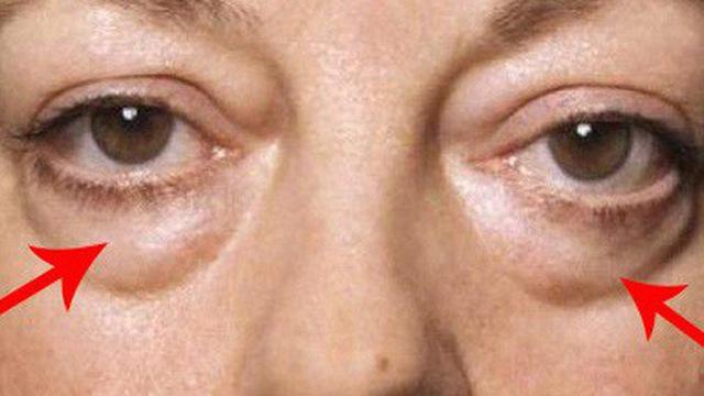Bọng mắt là gì? Nguyên nhân – Cách điều trị từ A – Z
